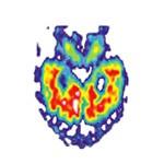 Čo je Alzheimerova choroba?   Aké sú príčiny Alzheimerovej choroby?