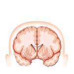 Náhla cievna mozgová príhoda a jej príčiny