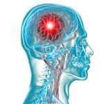 Život s cievnou mozgovou príhodou